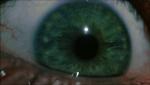 57.Eye
